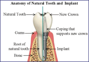 Dental Implants are devices that replace the roots of missing teeth and used to support crowns, bridges or dentures.