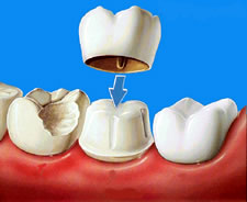 Dental crowns as a restorative dentistry solution