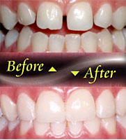 Porcelain Veneers can change the shape and length of your teeth